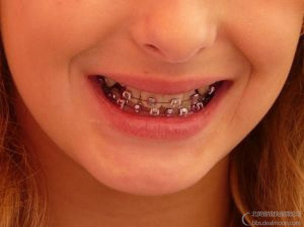 braces-orthodontist_2955161.jpg